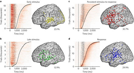 Cortical distribution and temporal dynamics of HG activity.
